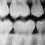 Dentophobia - Fear of Dentists